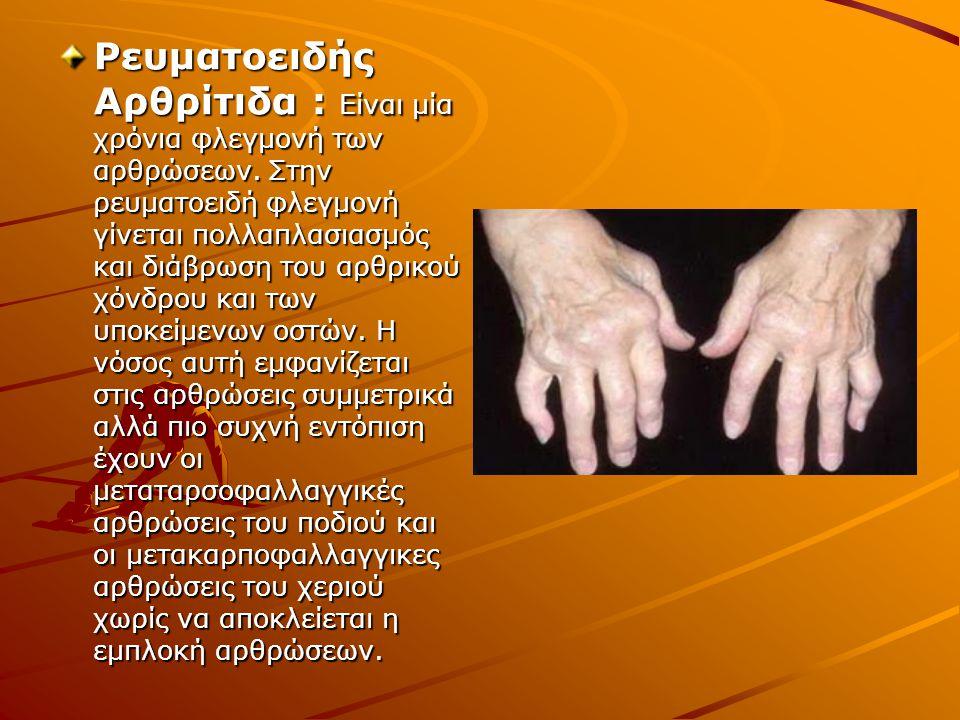Ρευματοειδής Αρθρίτιδα : Είναι μία χρόνια φλεγμονή των αρθρώσεων. Στην ρευματοειδή φλεγμονή γίνεται πολλαπλασιασμός και διάβρωση του αρθρικού χόνδρου