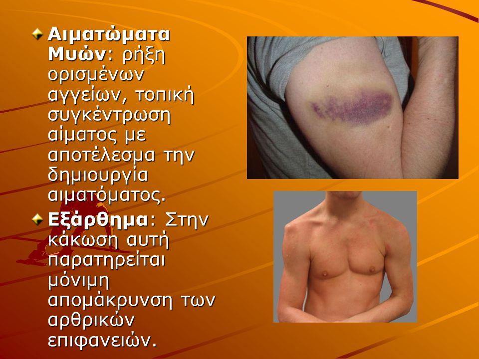 Αιματώματα Μυών: ρήξη ορισμένων αγγείων, τοπική συγκέντρωση αίματος με αποτέλεσμα την δημιουργία αιματόματος. Εξάρθημα: Στην κάκωση αυτή παρατηρείται