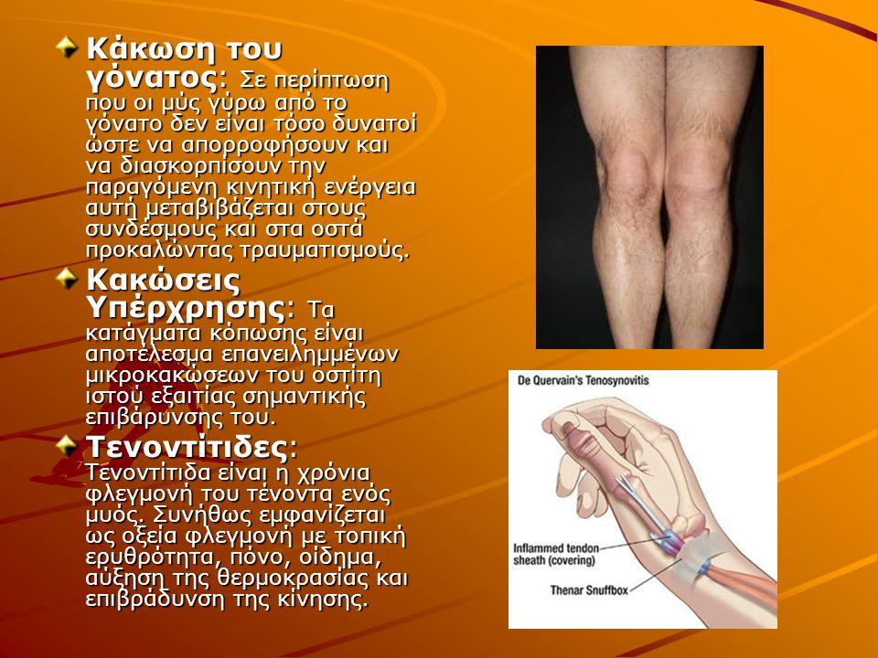 Κάκωση του γόνατος: Σε περίπτωση που οι μύς γύρω από το γόνατο δεν είναι τόσο δυνατοί ώστε να απορροφήσουν και να διασκορπίσουν την παραγόμενη κινητικ