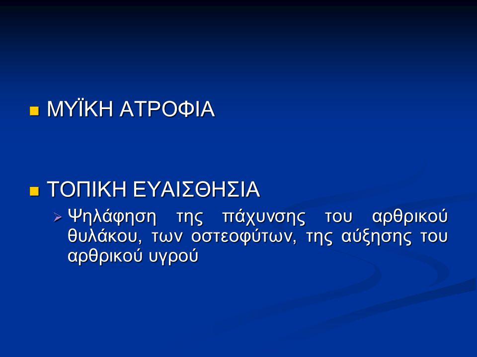 ΜΥΪΚΗ ΑΤΡΟΦΙΑ ΜΥΪΚΗ ΑΤΡΟΦΙΑ ΤΟΠΙΚΗ ΕΥΑΙΣΘΗΣΙΑ ΤΟΠΙΚΗ ΕΥΑΙΣΘΗΣΙΑ  Ψηλάφηση της πάχυνσης του αρθρικού θυλάκου, των οστεοφύτων, της αύξησης του αρθρικού