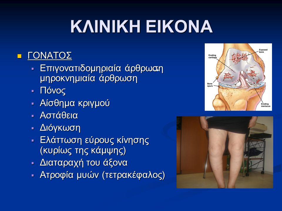 ΚΛΙΝΙΚΗ ΕΙΚΟΝΑ ΓΟΝΑΤΟΣ ΓΟΝΑΤΟΣ  Επιγονατιδομηριαία άρθρωση μηροκνημιαία άρθρωση  Πόνος  Αίσθημα κριγμού  Αστάθεια  Διόγκωση  Ελάττωση εύρους κίν