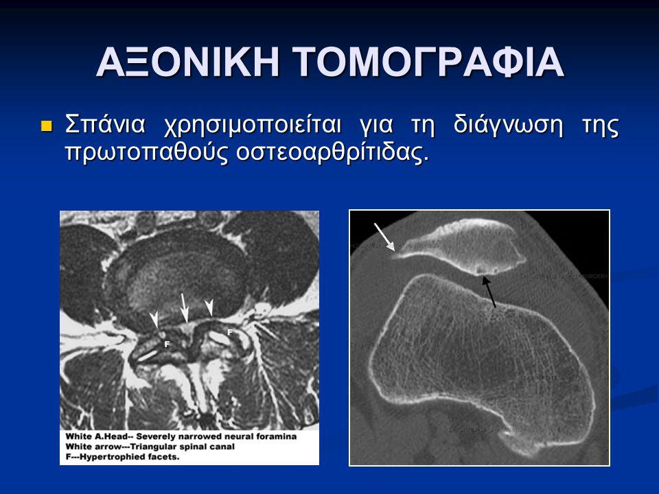 ΑΞΟΝΙΚΗ ΤΟΜΟΓΡΑΦΙΑ Σπάνια χρησιμοποιείται για τη διάγνωση της πρωτοπαθούς οστεοαρθρίτιδας.