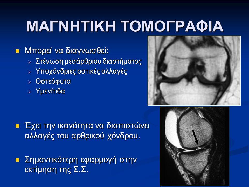 ΜΑΓΝΗΤΙΚΗ ΤΟΜΟΓΡΑΦΙΑ Μπορεί να διαγνωσθεί: Μπορεί να διαγνωσθεί:  Στένωση μεσάρθριου διαστήματος  Υποχόνδριες οστικές αλλαγές  Οστεόφυτα  Υμενίτιδ