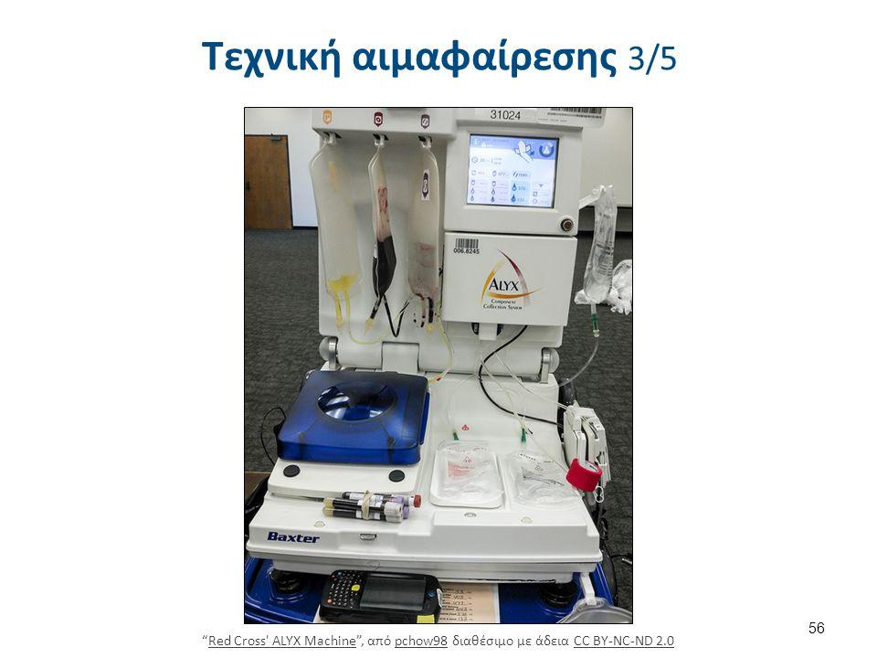 """Τεχνική αιμαφαίρεσης 3/5 56 """"Red Cross' ALYX Machine"""", από pchow98 διαθέσιμο με άδεια CC BY-NC-ND 2.0Red Cross' ALYX Machinepchow98CC BY-NC-ND 2.0"""