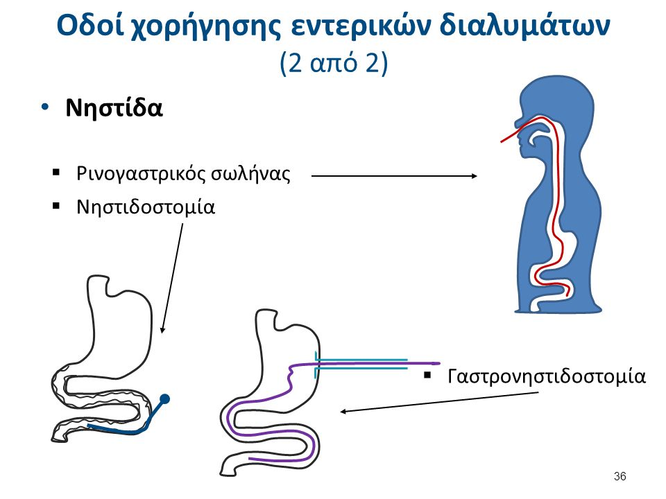 Νηστίδα 36  Ρινογαστρικός σωλήνας  Νηστιδοστομία  Γαστρονηστιδοστομία Οδοί χορήγησης εντερικών διαλυμάτων (2 από 2)