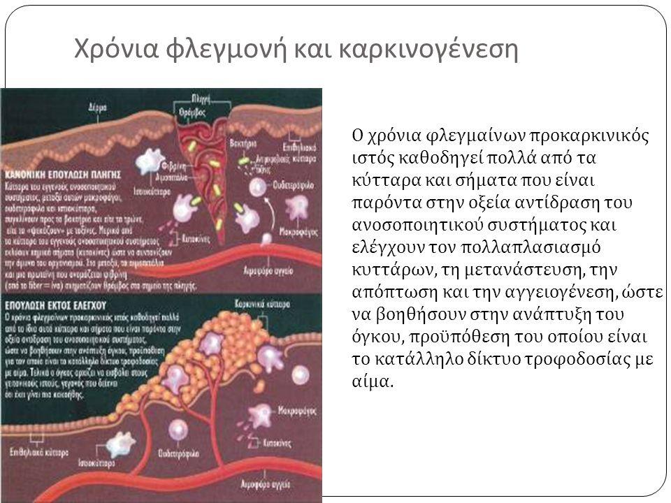 Χρόνια φλεγμονή και καρκινογένεση Ο χρόνια φλεγμαίνων προκαρκινικός ιστός καθοδηγεί πολλά από τα κύτταρα και σήματα που είναι παρόντα στην οξεία αντίδ