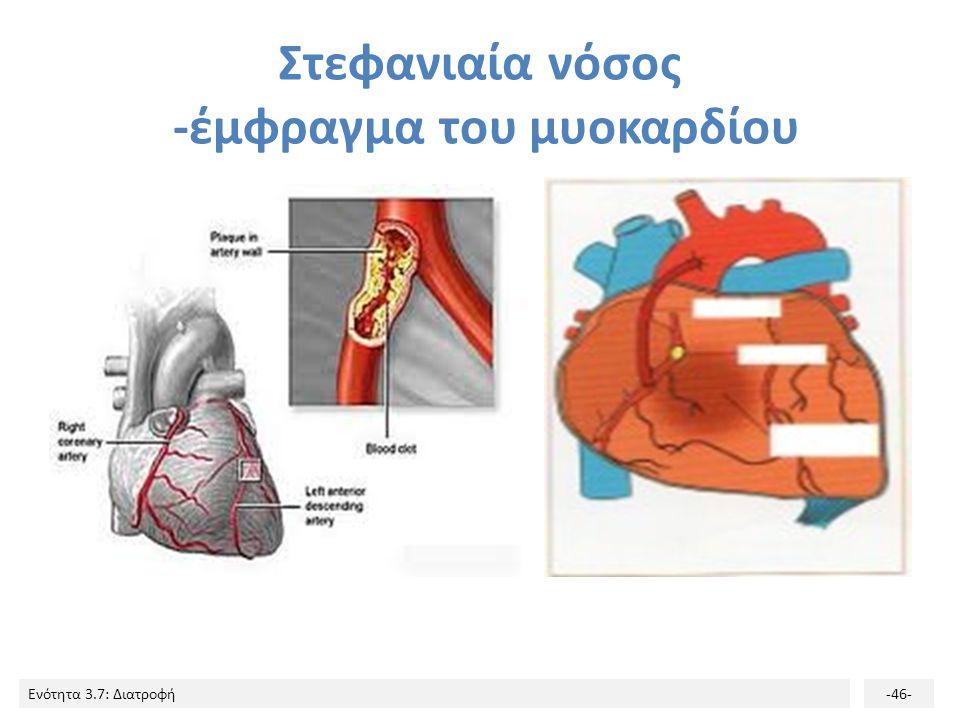 Ενότητα 3.7: Διατροφή-46- Στεφανιαία νόσος -έμφραγμα του μυοκαρδίου