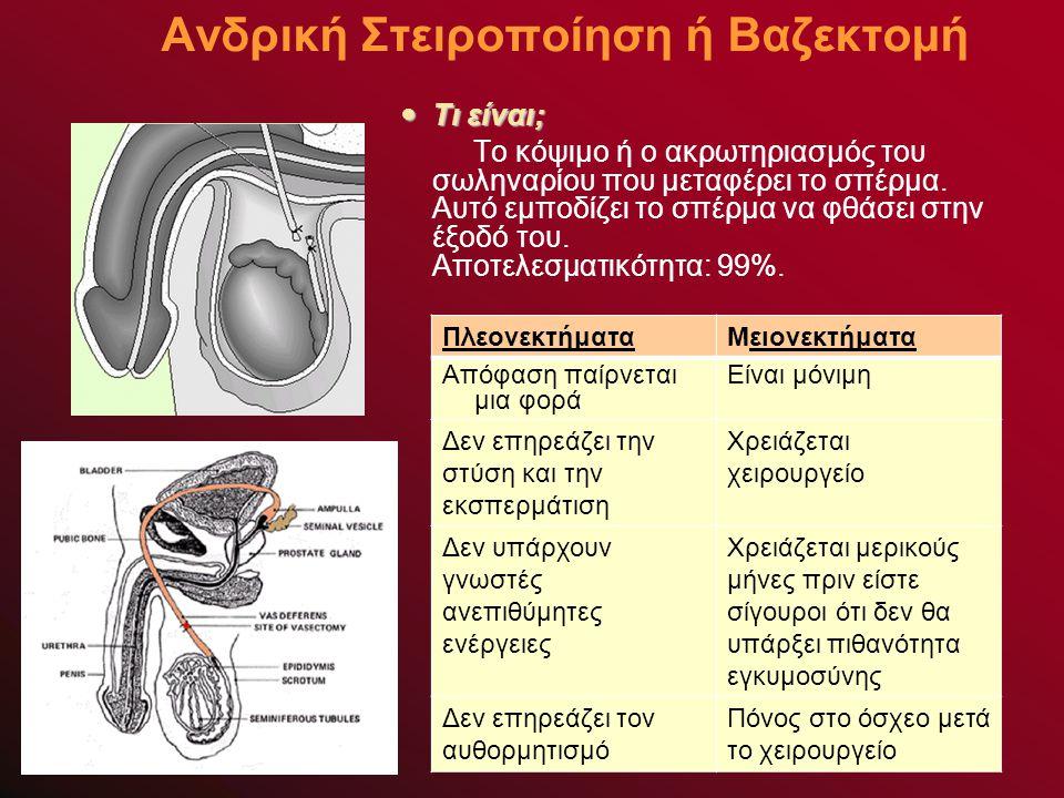 Ανδρική Στειροποίηση ή Βαζεκτομή ΠλεονεκτήματαΜειονεκτήματα Απόφαση παίρνεται μια φορά Είναι μόνιμη Δεν επηρεάζει την στύση και την εκσπερμάτιση Χρειάζεται χειρουργείο Δεν υπάρχουν γνωστές ανεπιθύμητες ενέργειες Χρειάζεται μερικούς μήνες πριν είστε σίγουροι ότι δεν θα υπάρξει πιθανότητα εγκυμοσύνης Δεν επηρεάζει τον αυθορμητισμό Πόνος στο όσχεο μετά το χειρουργείο Τι είναι; Τι είναι; Το κόψιμο ή ο ακρωτηριασμός του σωληναρίου που μεταφέρει το σπέρμα.