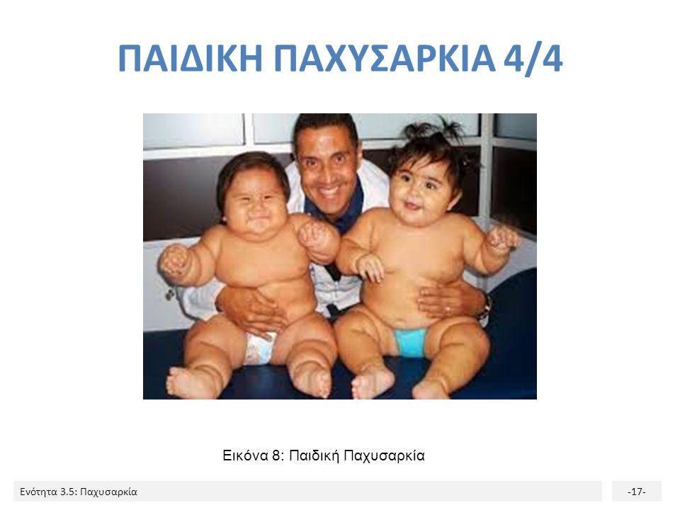 Ενότητα 3.5: Παχυσαρκία-17- Εικόνα 8: Παιδική Παχυσαρκία ΠΑΙΔΙΚΗ ΠΑΧΥΣΑΡΚΙΑ 4/4
