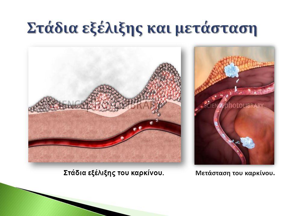 Στάδια εξέλιξης του καρκίνου. Μετάσταση του καρκίνου.