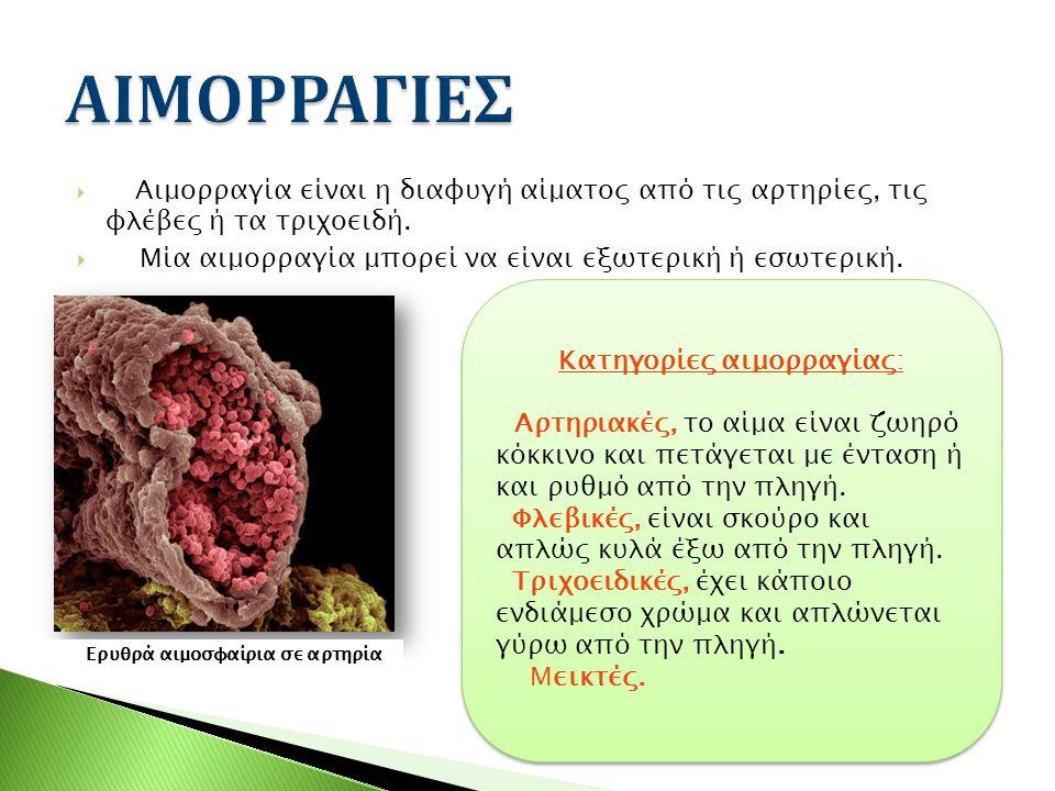  Αιμορραγία είναι η διαφυγή αίματος από τις αρτηρίες, τις φλέβες ή τα τριχοειδή.  Μία αιμορραγία μπορεί να είναι εξωτερική ή εσωτερική. Ερυθρά αιμοσ