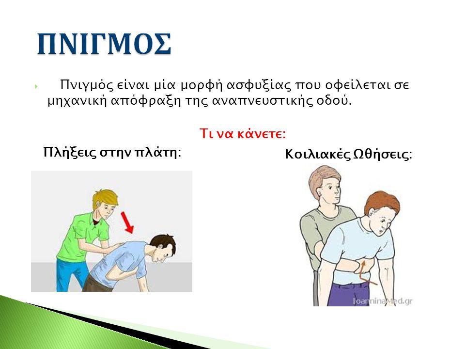  Πνιγμός είναι μία μορφή ασφυξίας που οφείλεται σε μηχανική απόφραξη της αναπνευστικής οδού. Τι να κάνετε: Πλήξεις στην πλάτη: Κοιλιακές Ωθήσεις:
