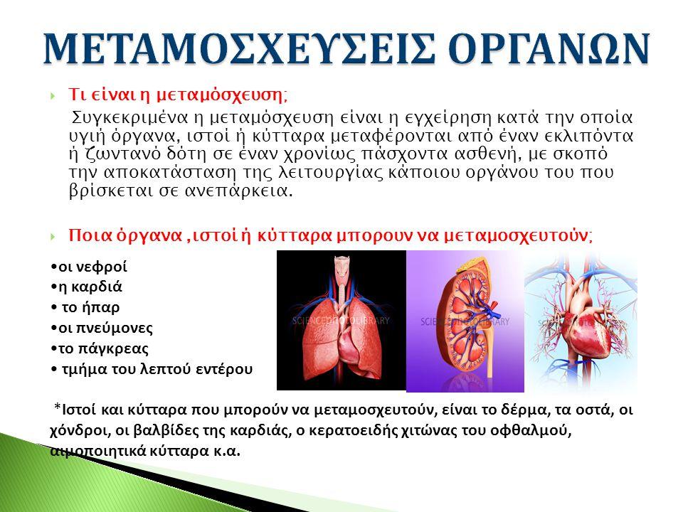  Τι είναι η μεταμόσχευση; Συγκεκριμένα η μεταμόσχευση είναι η εγχείρηση κατά την οποία υγιή όργανα, ιστοί ή κύτταρα μεταφέρονται από έναν εκλιπόντα ή