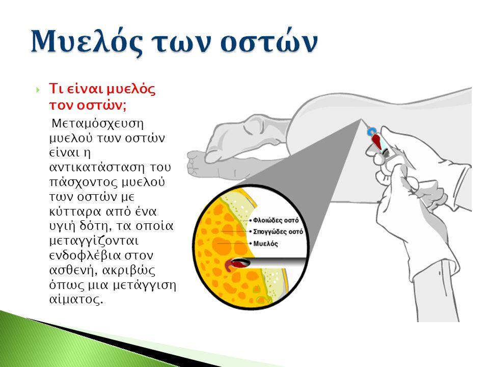 Τι είναι μυελός τον οστών; Μεταμόσχευση μυελού των οστών είναι η αντικατάσταση του πάσχοντος μυελού των οστών με κύτταρα από ένα υγιή δότη, τα οποία