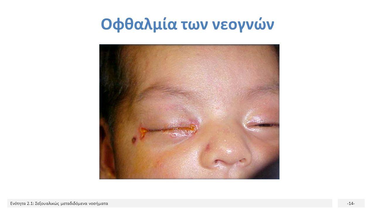 Ενότητα 2.1: Σεξουαλικώς μεταδιδόμενα νοσήματα-14- Οφθαλμία των νεογνών
