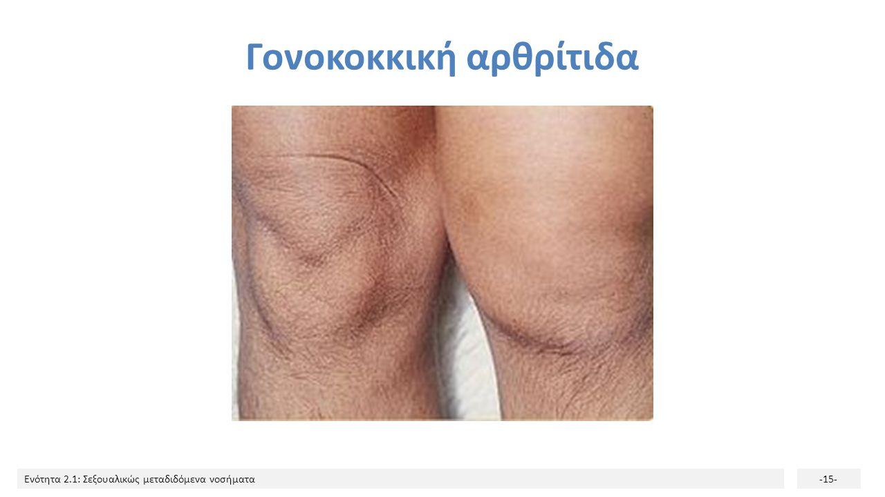 Ενότητα 2.1: Σεξουαλικώς μεταδιδόμενα νοσήματα-15- Γονοκοκκική αρθρίτιδα