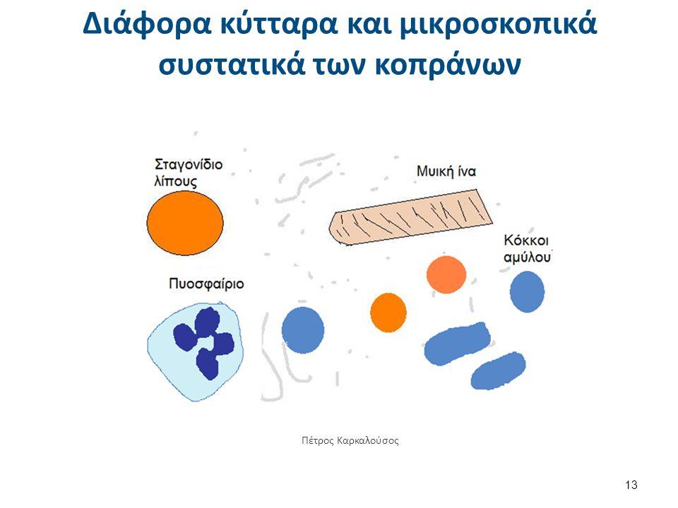 Διάφορα κύτταρα και μικροσκοπικά συστατικά των κοπράνων 13 Πέτρος Καρκαλούσος