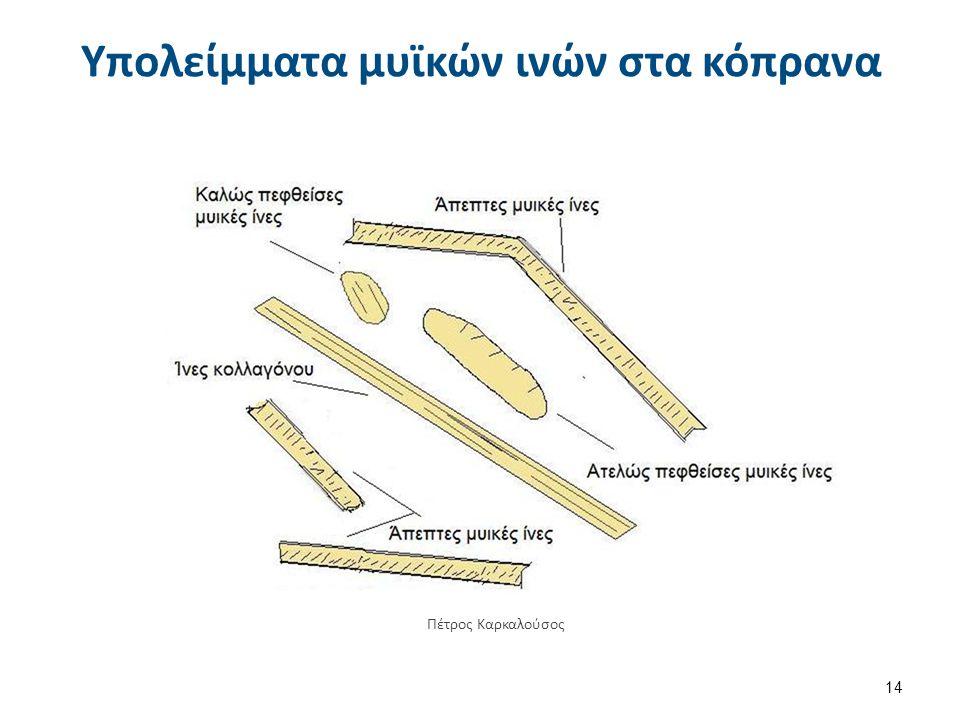 Υπολείμματα μυϊκών ινών στα κόπρανα 14 Πέτρος Καρκαλούσος