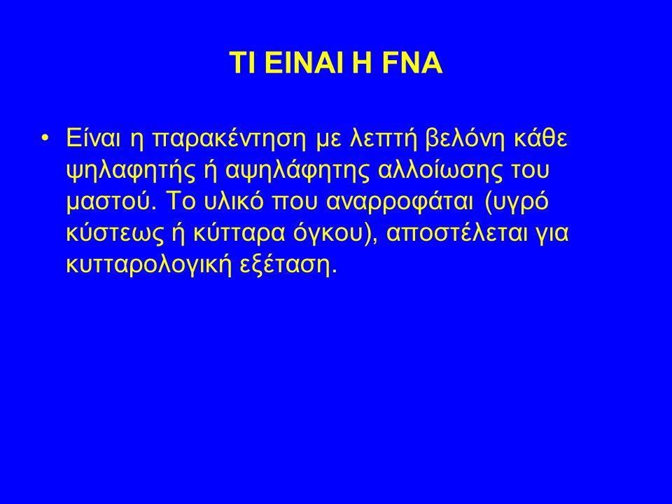 TI EINAI H FNA Eίναι η παρακέντηση με λεπτή βελόνη κάθε ψηλαφητής ή αψηλάφητης αλλοίωσης του μαστού. Το υλικό που αναρροφάται (υγρό κύστεως ή κύτταρα