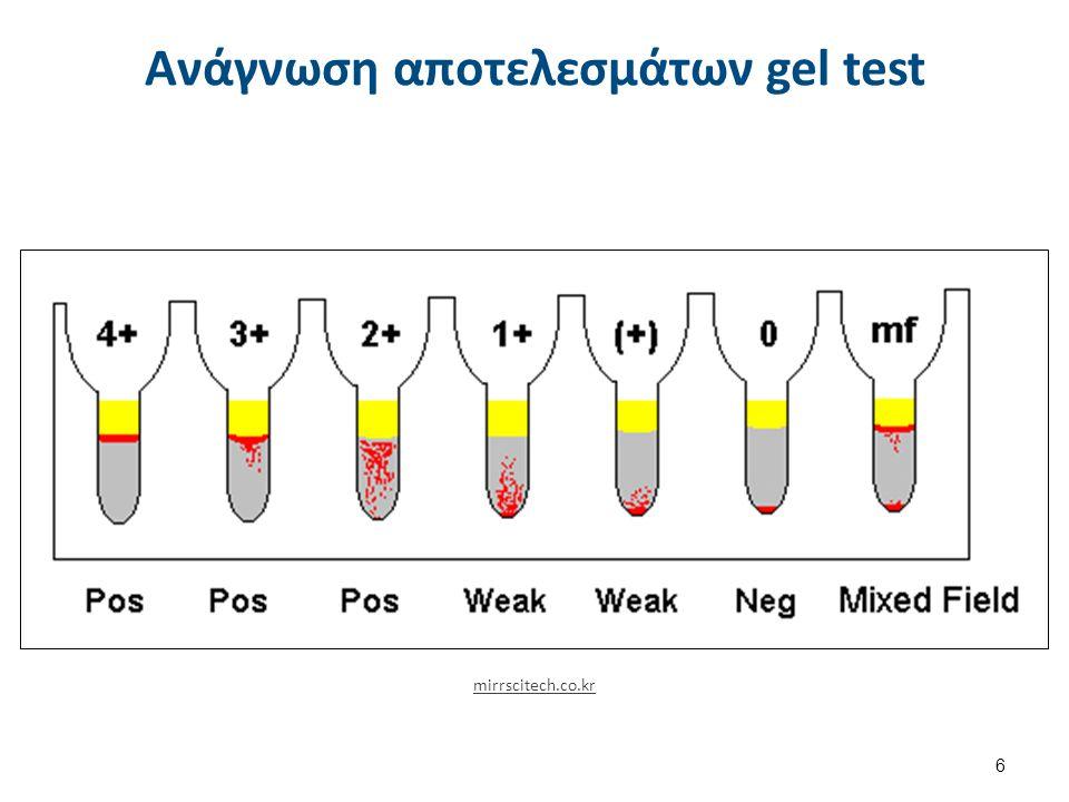 Ανάγνωση αποτελεσμάτων gel test mirrscitech.co.kr 6
