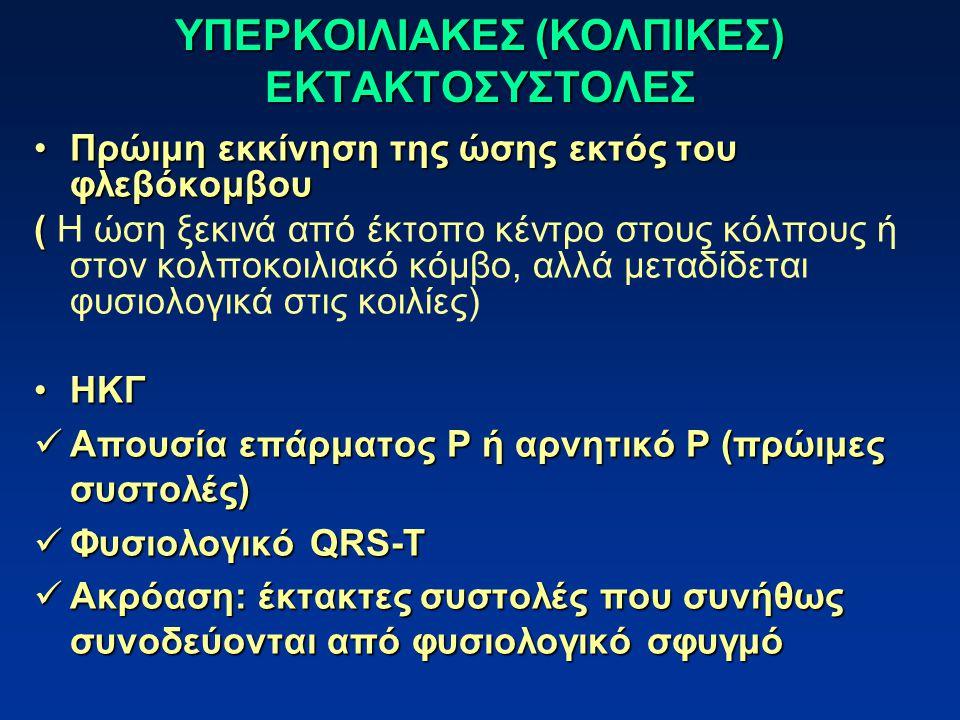 ΥΠΕΡΚΟΙΛΙΑΚΕΣ (ΚΟΛΠΙΚΕΣ) ΕΚΤΑΚΤΟΣΥΣΤΟΛΕΣ Πρώιμη εκκίνηση της ώσης εκτός του φλεβόκομβουΠρώιμη εκκίνηση της ώσης εκτός του φλεβόκομβου ( ( Η ώση ξεκινά