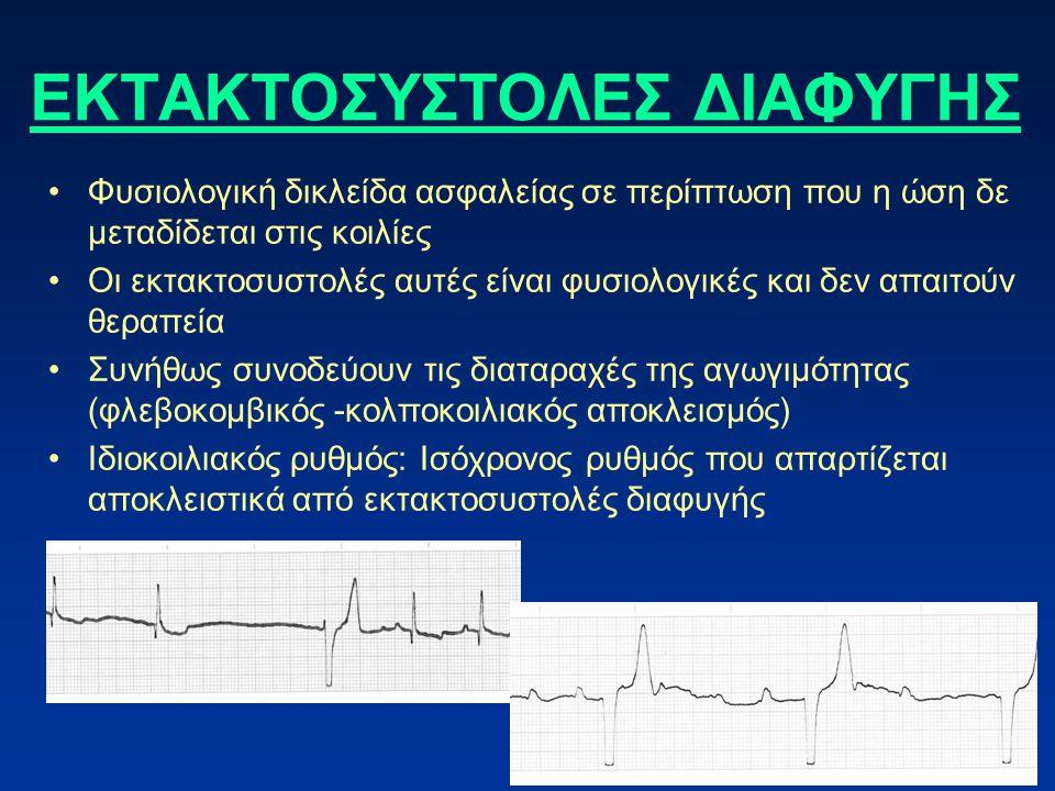 ΕΚΤΑΚΤΟΣΥΣΤΟΛΕΣ ΔΙΑΦΥΓΗΣ Φυσιολογική δικλείδα ασφαλείας σε περίπτωση που η ώση δε μεταδίδεται στις κοιλίες Οι εκτακτοσυστολές αυτές είναι φυσιολογικές και δεν απαιτούν θεραπεία Συνήθως συνοδεύουν τις διαταραχές της αγωγιμότητας (φλεβοκομβικός -κολποκοιλιακός αποκλεισμός) Ιδιοκοιλιακός ρυθμός: Ισόχρονος ρυθμός που απαρτίζεται αποκλειστικά από εκτακτοσυστολές διαφυγής