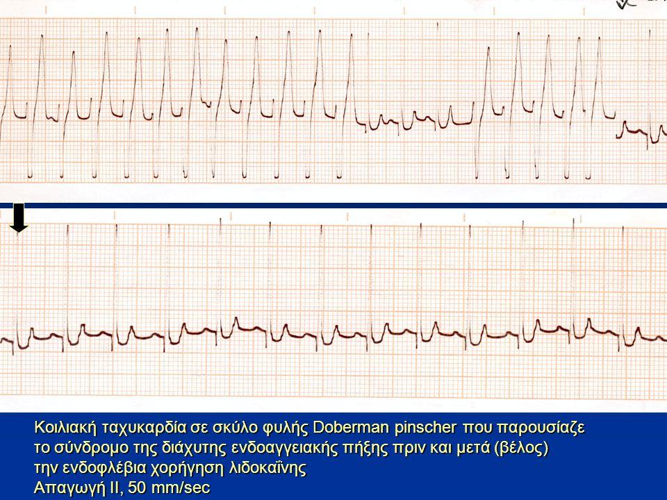 Κοιλιακή ταχυκαρδία σε σκύλο φυλής Doberman pinscher που παρουσίαζε το σύνδρομο της διάχυτης ενδοαγγειακής πήξης πριν και μετά (βέλος) την ενδοφλέβια χορήγηση λιδοκαΐνης Απαγωγή ΙΙ, 50 mm/sec