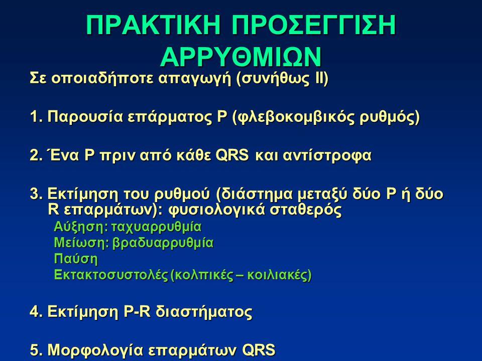 ΠΡΑΚΤΙΚΗ ΠΡΟΣΕΓΓΙΣΗ ΑΡΡΥΘΜΙΩΝ Σε οποιαδήποτε απαγωγή (συνήθως ΙΙ) 1. Παρουσία επάρματος P (φλεβοκομβικός ρυθμός) 2. Ένα P πριν από κάθε QRS και αντίστ