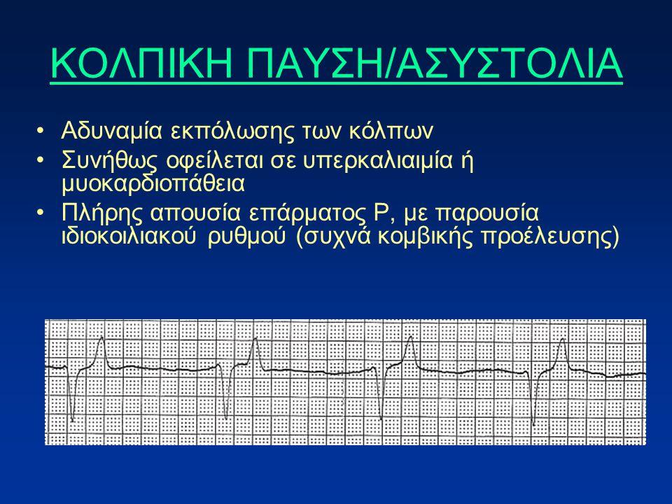 ΚΟΛΠΙΚΗ ΠΑΥΣΗ/ΑΣΥΣΤΟΛΙΑ Αδυναμία εκπόλωσης των κόλπων Συνήθως οφείλεται σε υπερκαλιαιμία ή μυοκαρδιοπάθεια Πλήρης απουσία επάρματος P, με παρουσία ιδιοκοιλιακού ρυθμού (συχνά κομβικής προέλευσης)