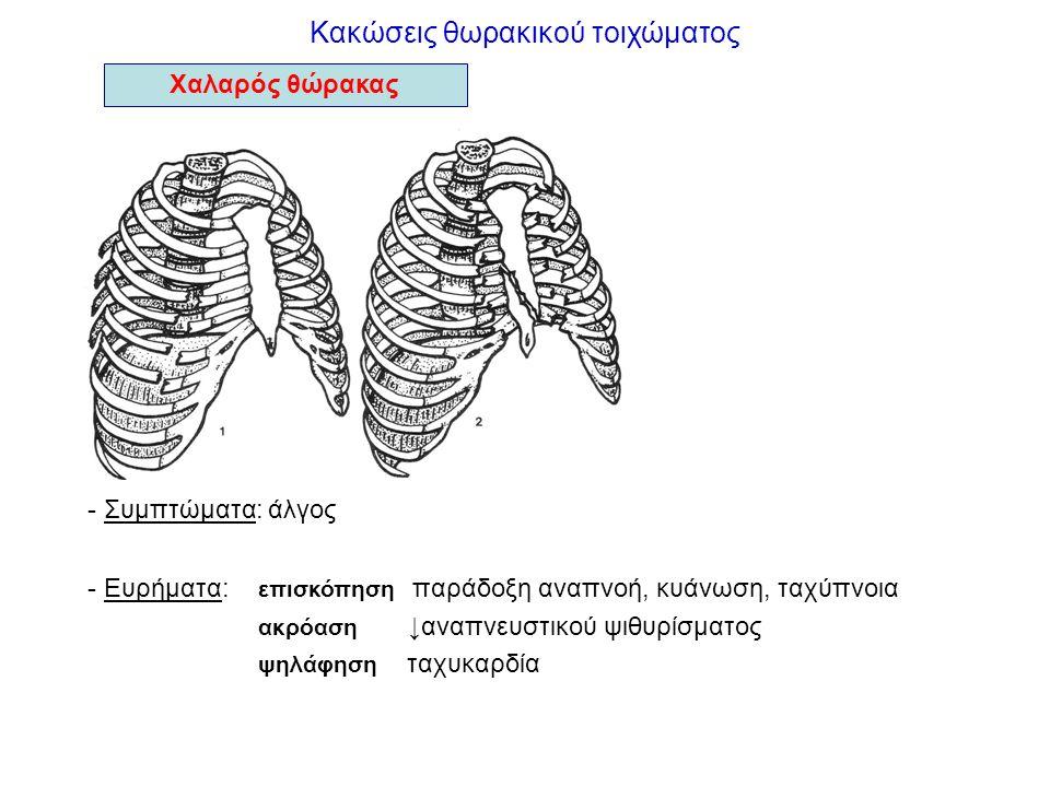 Κακώσεις θωρακικού τοιχώματος - Συμπτώματα: άλγος - Ευρήματα: επισκόπηση παράδοξη αναπνοή, κυάνωση, ταχύπνοια ακρόαση ↓αναπνευστικού ψιθυρίσματος ψηλά