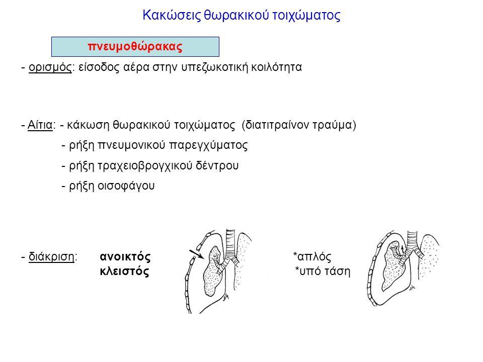 Κακώσεις θωρακικού τοιχώματος - ορισμός: είσοδος αέρα στην υπεζωκοτική κοιλότητα - Αίτια: - κάκωση θωρακικού τοιχώματος (διατιτραίνον τραύμα) - ρήξη π