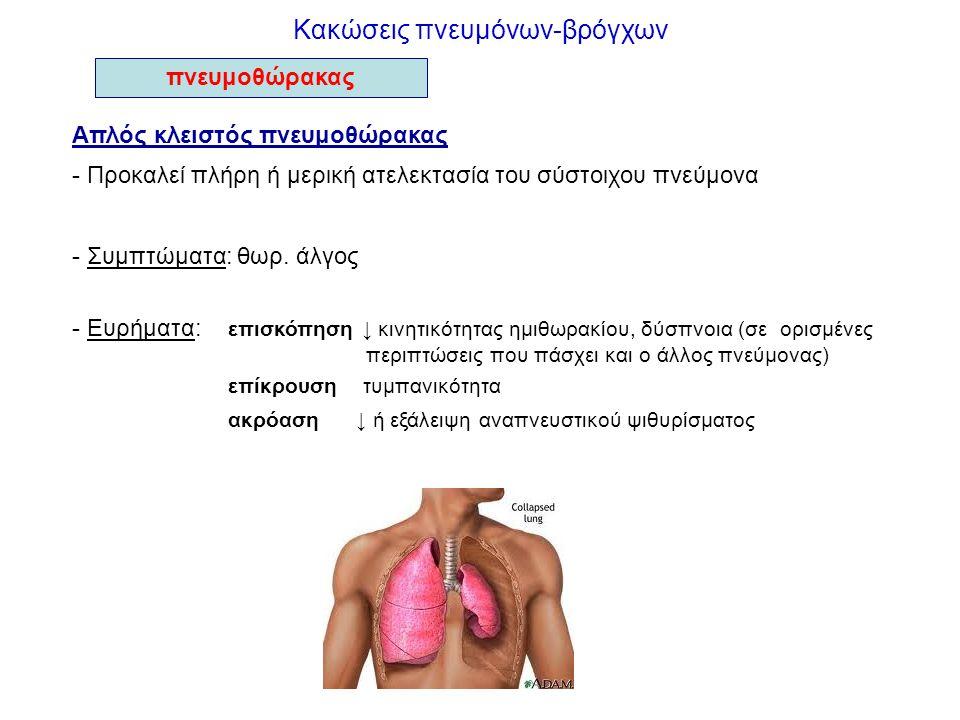 Κακώσεις πνευμόνων-βρόγχων Απλός κλειστός πνευμοθώρακας - Προκαλεί πλήρη ή μερική ατελεκτασία του σύστοιχου πνεύμονα - Συμπτώματα: θωρ. άλγος - Ευρήμα