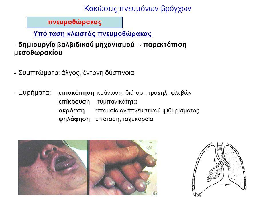 Κακώσεις πνευμόνων-βρόγχων Υπό τάση κλειστός πνευμοθώρακας - δημιουργία βαλβιδικού μηχανισμού→ παρεκτόπιση μεσοθωρακίου - Συμπτώματα: άλγος, έντονη δύ