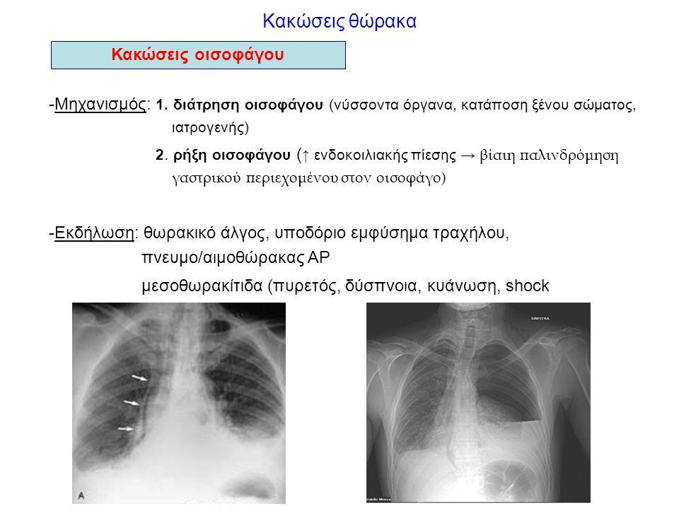 Κακώσεις θώρακα Κακώσεις οισοφάγου -Μηχανισμός: 1. διάτρηση οισοφάγου (νύσσοντα όργανα, κατάποση ξένου σώματος, ιατρογενής) 2. ρήξη οισοφάγου ( ↑ ενδο