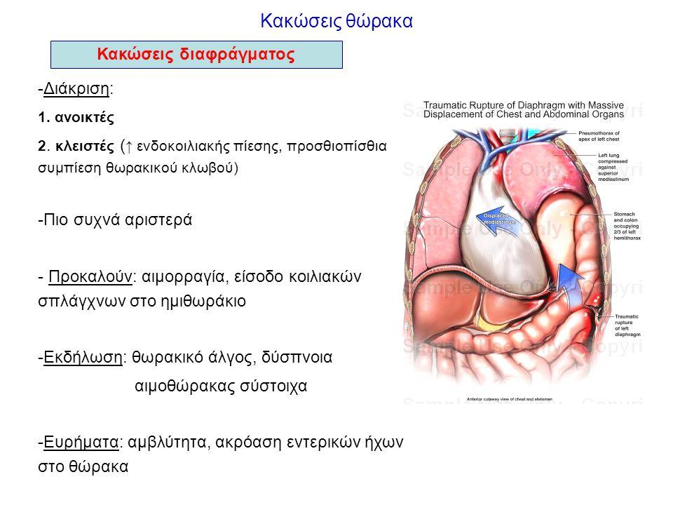 Κακώσεις θώρακα Κακώσεις διαφράγματος -Διάκριση: 1. ανοικτές 2. κλειστές ( ↑ ενδοκοιλιακής πίεσης, προσθιοπίσθια συμπίεση θωρακικού κλωβού) -Πιο συχνά