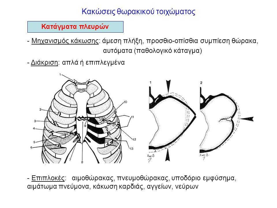 Κακώσεις θώρακα Αιμοθώρακας - ορισμός: συσσώρευση αίματος στην υπεζωκοτική κοιλότητα - Συμπτώματα: δύσπνοια - Ευρήματα: επισκόπηση ωχρότητα επίκρουση αμβλύτητα ψηλάφηση ↓ φωνητικών δονήσεων ακρόαση ↓ αναπνευστικού ψιθυρίσματος πλευριτικό φύσημα Χυλοθώρακας - ορισμός: συσσώρευση λέμφου στην υπεζωκοτική κοιλότητα - Συμπτώματα: ήπια - Ευρήματα: αντίστοιχα του αιμοθώρακα