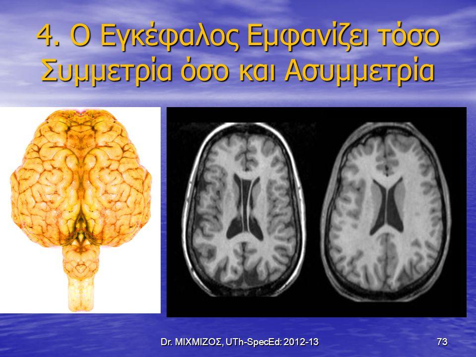 4. Ο Εγκέφαλος Εμφανίζει τόσο Συμμετρία όσο και Ασυμμετρία Dr. ΜΙΧΜΙΖΟΣ, UTh-SpecEd: 2012-13 73
