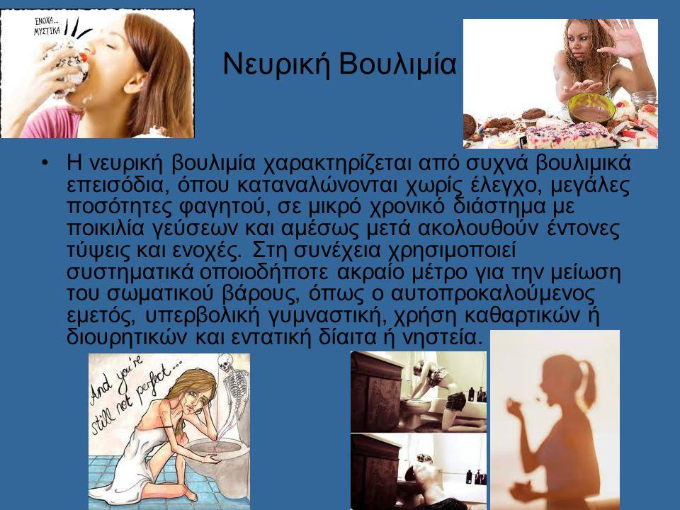 Νευρική Βουλιμία Η νευρική βουλιμία χαρακτηρίζεται από συχνά βουλιμικά επεισόδια, όπου καταναλώνονται χωρίς έλεγχο, μεγάλες ποσότητες φαγητού, σε μικρό χρονικό διάστημα με ποικιλία γεύσεων και αμέσως μετά ακολουθούν έντονες τύψεις και ενοχές.