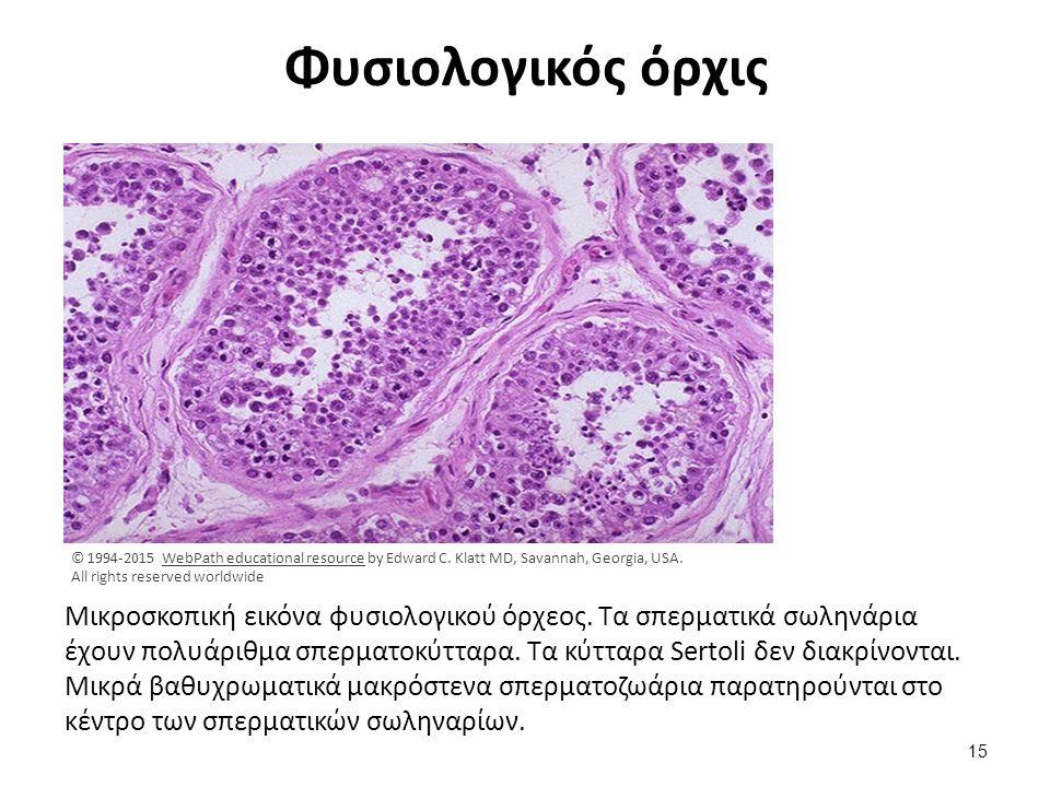 Φυσιολογικός όρχις Μικροσκοπική εικόνα φυσιολογικού όρχεος. Τα σπερματικά σωληνάρια έχουν πολυάριθμα σπερματοκύτταρα. Τα κύτταρα Sertoli δεν διακρίνον