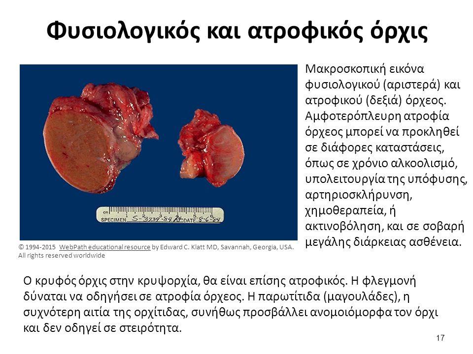Φυσιολογικός και ατροφικός όρχις Μακροσκοπική εικόνα φυσιολογικού (αριστερά) και ατροφικού (δεξιά) όρχεος. Αμφοτερόπλευρη ατροφία όρχεος μπορεί να προ