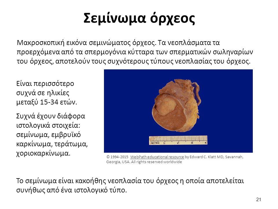 Σεμίνωμα όρχεος Μακροσκοπική εικόνα σεμινώματος όρχεος. Τα νεοπλάσματα τα προερχόμενα από τα σπερμογόνια κύτταρα των σπερματικών σωληναρίων του όρχεος