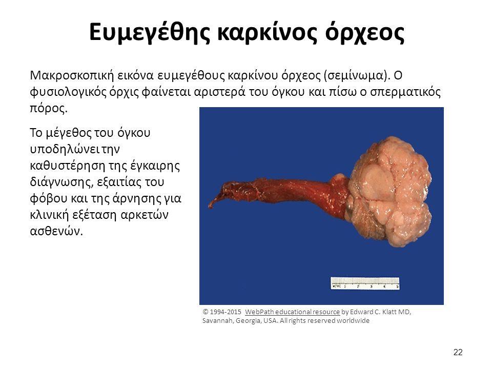 Ευμεγέθης καρκίνος όρχεος Μακροσκοπική εικόνα ευμεγέθους καρκίνου όρχεος (σεμίνωμα). Ο φυσιολογικός όρχις φαίνεται αριστερά του όγκου και πίσω ο σπερμ