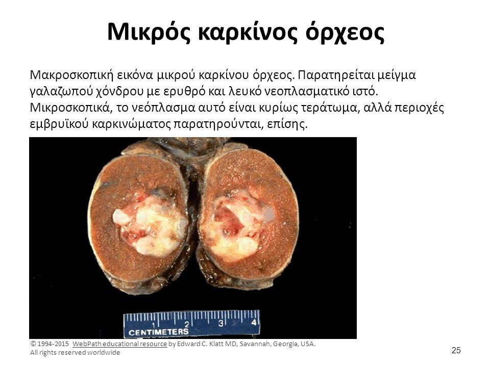 Μικρός καρκίνος όρχεος Μακροσκοπική εικόνα μικρού καρκίνου όρχεος. Παρατηρείται μείγμα γαλαζωπού χόνδρου με ερυθρό και λευκό νεοπλασματικό ιστό. Μικρο
