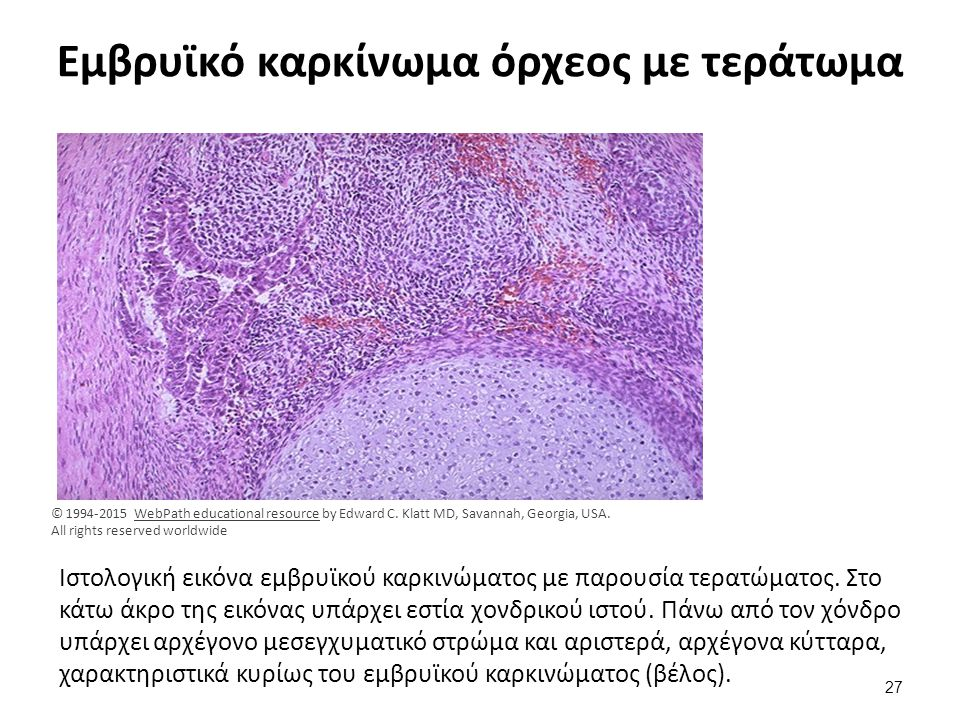 Εμβρυϊκό καρκίνωμα όρχεος με τεράτωμα Ιστολογική εικόνα εμβρυϊκού καρκινώματος με παρουσία τερατώματος. Στο κάτω άκρο της εικόνας υπάρχει εστία χονδρι