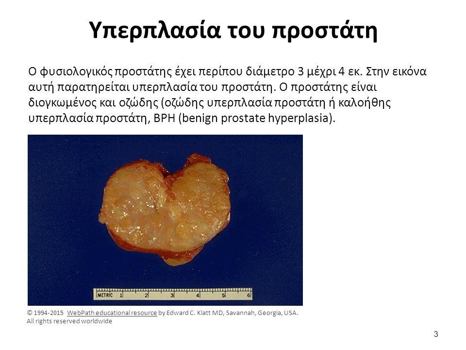 Αντίδραση της χρώσης ανοσοϋπεροξυδάση για PSA Θετική αντίδραση της χρώσης ανοσοϋπεροξυδάσης (καφεοειδείς περιοχές), με το αντίσωμα για το ειδικό προστατικό αντιγόνο (prostate specific antigen, PSA).