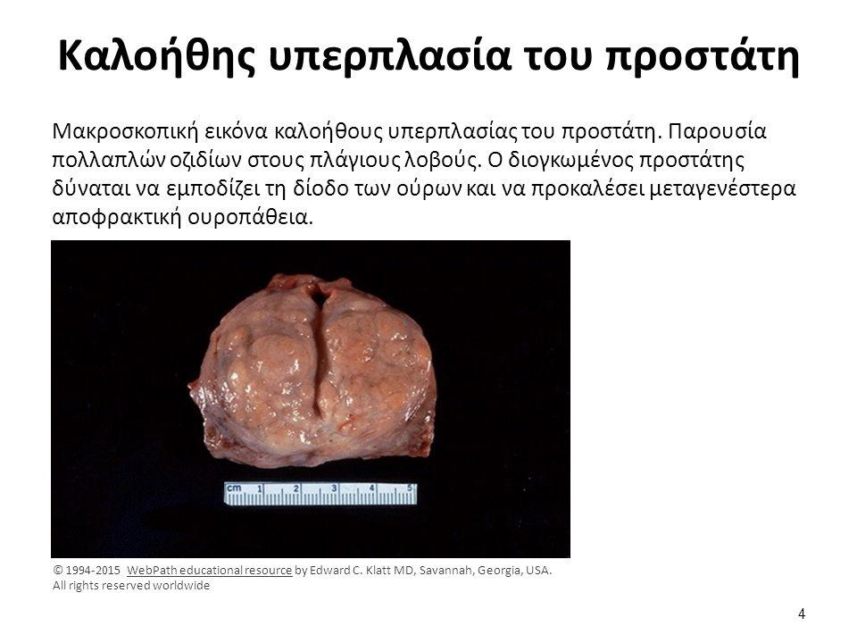 Αδενωματώδης υπερπλασία προστάτη Iστολογική εικόνα αδενωματώδους υπερπλασίας προστάτη.