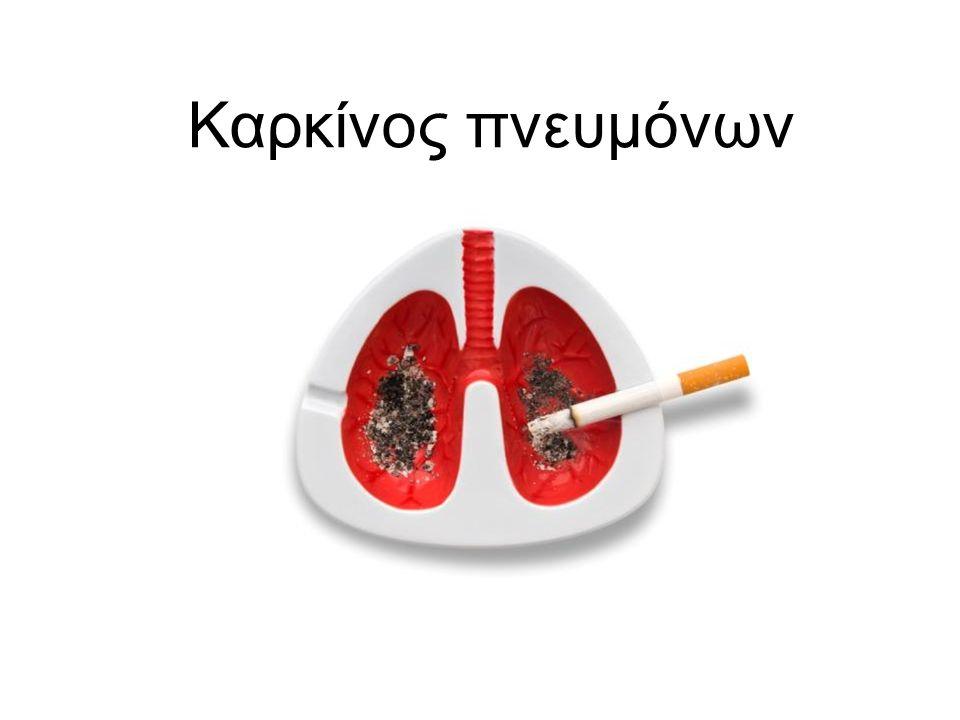 Καρκίνος πνευμόνων