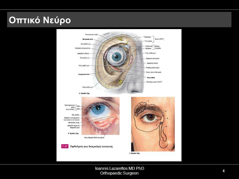 Ioannis Lazarettos MD PhD Orthopaedic Surgeon 4 Οπτικό Νεύρο