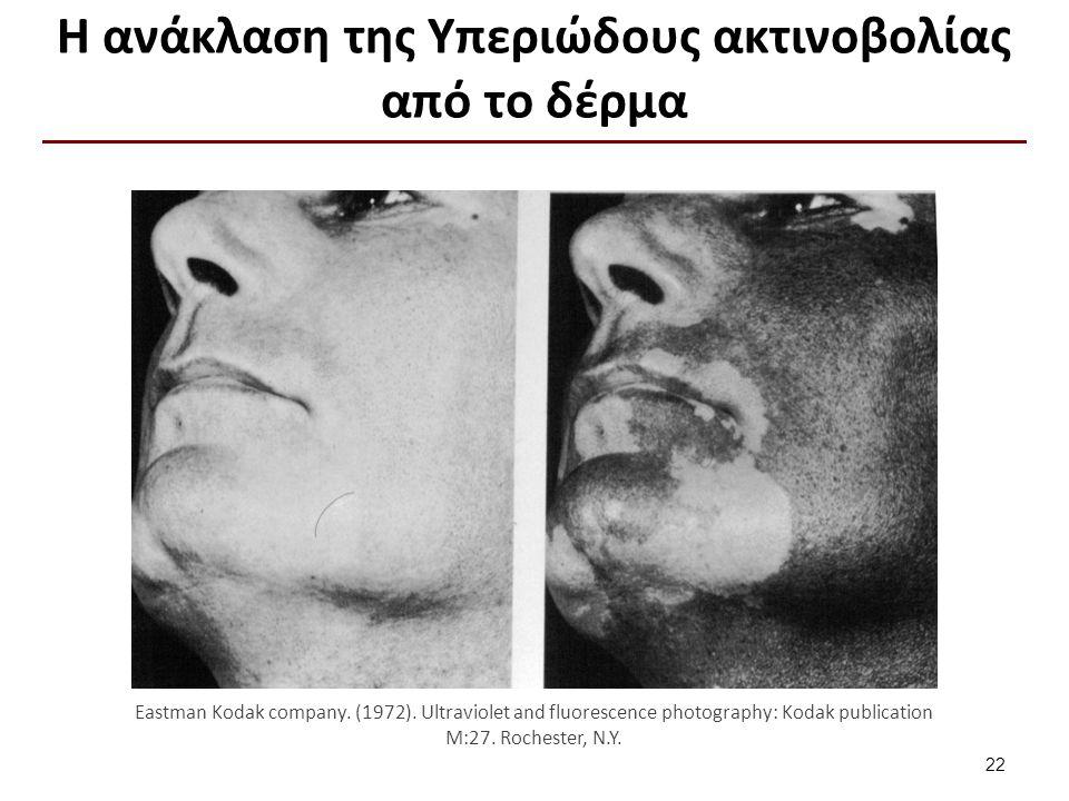 Η ανάκλαση της Υπεριώδους ακτινοβολίας από το δέρμα 22 Eastman Kodak company. (1972). Ultraviolet and fluorescence photography: Kodak publication M:27