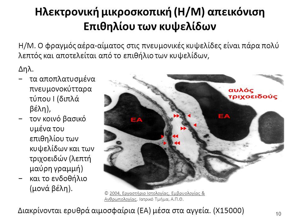Ηλεκτρονική μικροσκοπική (Η/Μ) απεικόνιση Επιθηλίου των κυψελίδων Η/Μ.